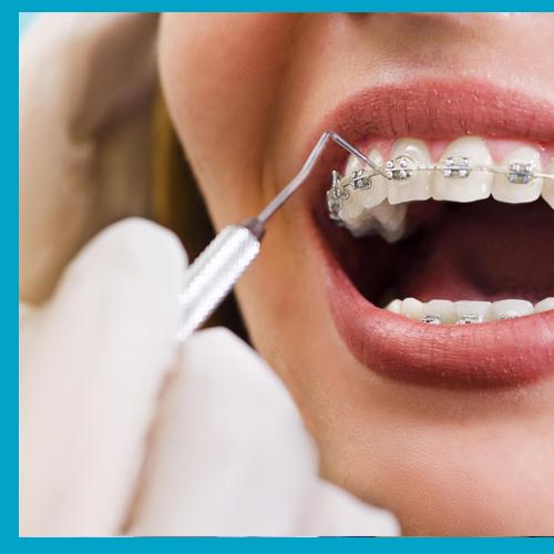 Orthodontics Treatments