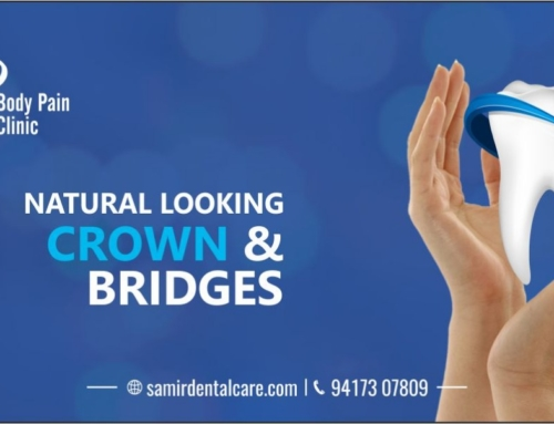 Crowns And Bridges in Delhi